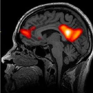 neuroimaging university of maryland school of medicine